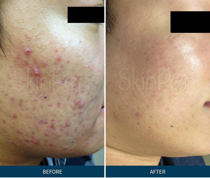 Microneedling SkinPen Skin2O Spa www.skin2ospa.com